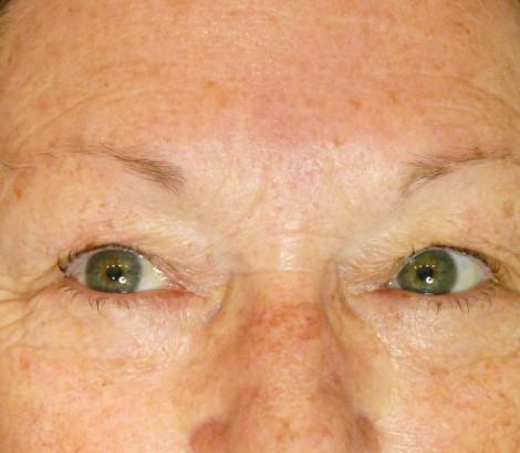 Permanent Makeup Kelowna before results