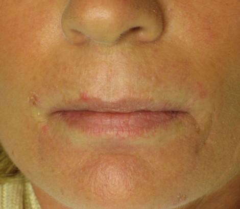 Permanent makeup tattoo kelowna before lipliner procedure