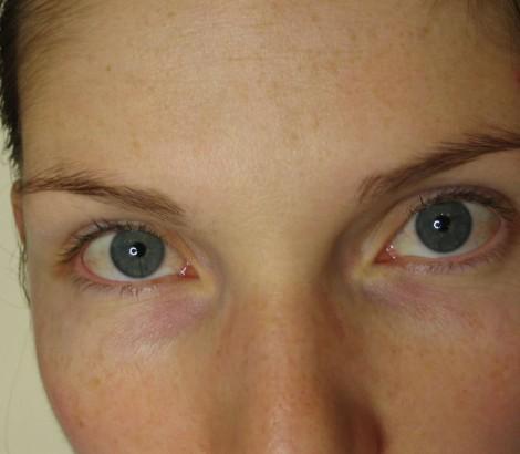 Cosmetic Tattoo Before eyebrow procedure