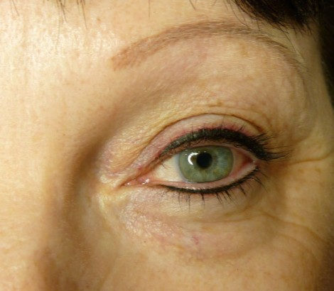 Permanent Makeup Tattooing eyeliner results